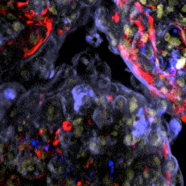 Confocal HCS image of 3D Cardiac Microtissues